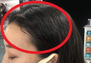 生え際のくせ毛