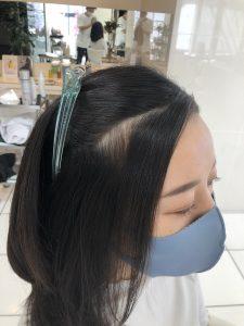 4ヵ月後/4回目の髪質改善事例《生え際の改善》